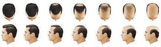 calvizie tumore prostata