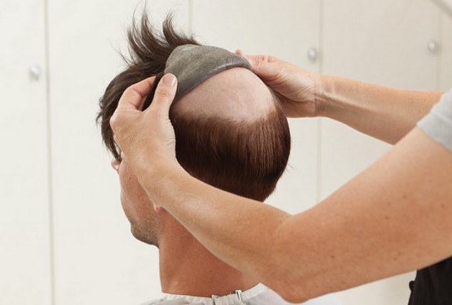 HAIR REPLACEMENT.jpg