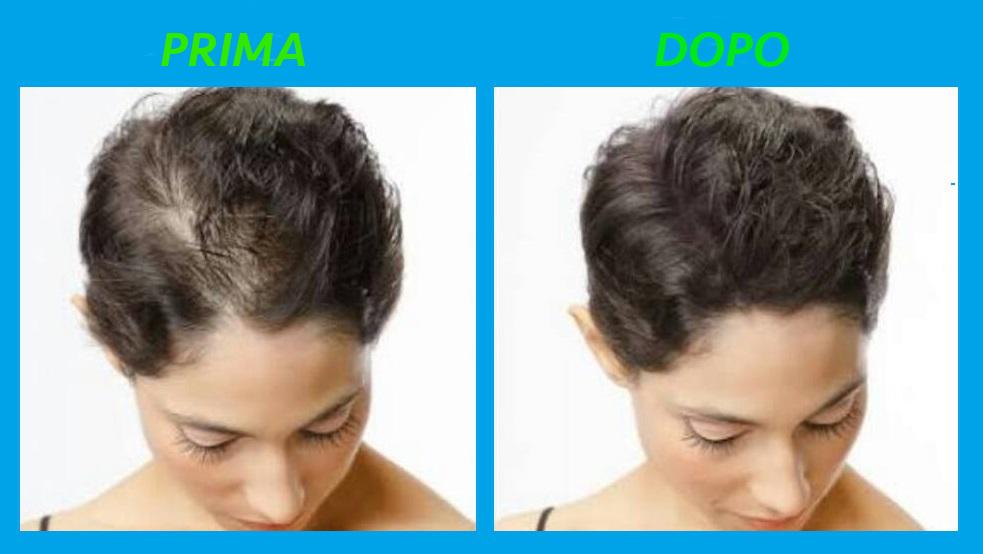 Taglio capelli per alopecia